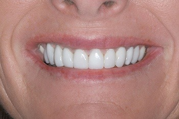 Closeup of female patient's flawless smile after treatment
