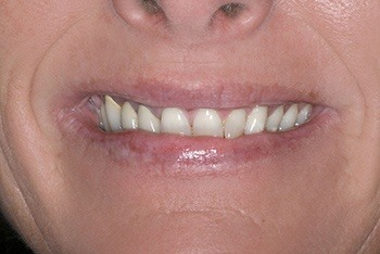 Closeup of femal patient's smile before treatment