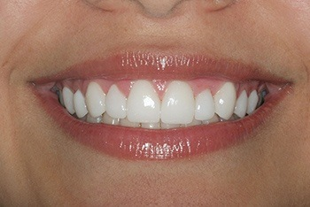 Closeup of young woman's perfectly aligned teeth