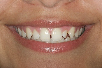 Closeup of young woman's unevenly spaced teeth