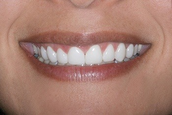 Closeup of woman's perfectly aligned smile