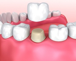 Animated dental crown placement