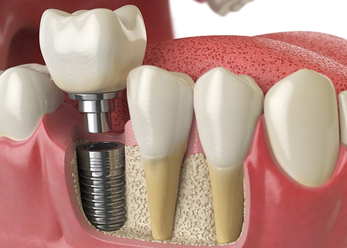 Diagram showing model of a dental implant in Houston