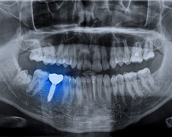 X-ray showing an integrated dental implant in Houston
