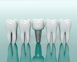 Diagram showing dental implant in Houston next to natural teeth