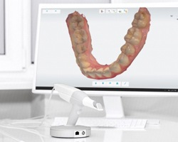dental scanner in front of monitor showing scan of teeth