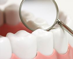 Closeup of teeth with dental sealants
