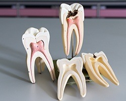 Models of the insides of teeth