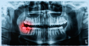 x-ray image of infected tooth