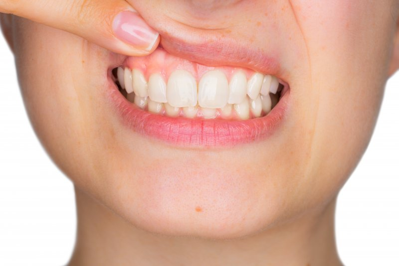 closeup of woman showing off gums